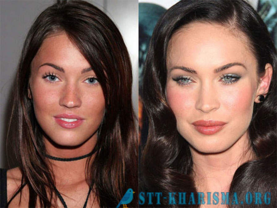 Celebrities that have changed Botox